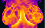 breast thermogram